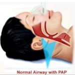 normal-pap